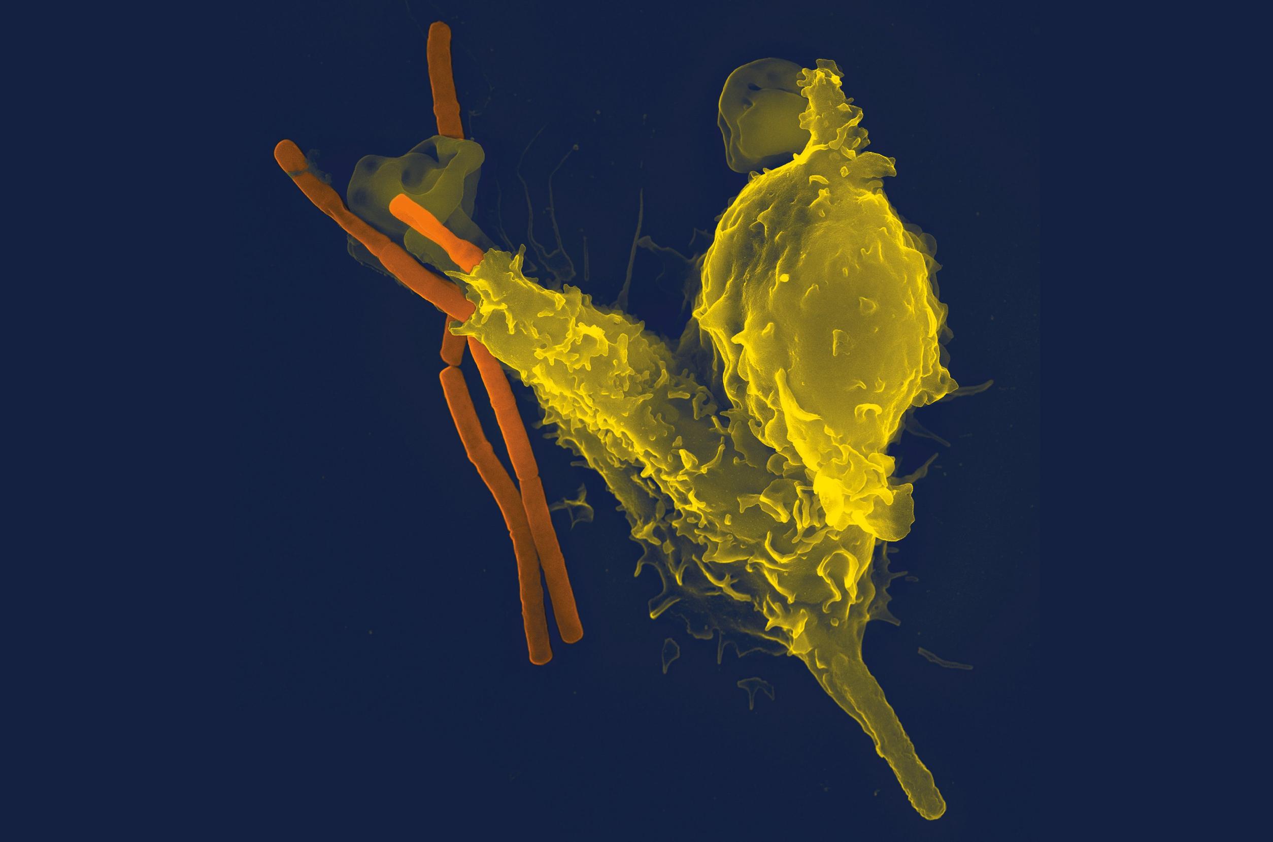 Anthrax versus antigen